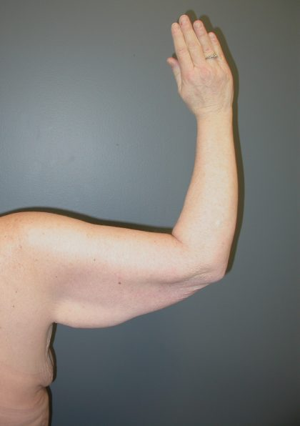 Arm Lift Before & After Patient #3970
