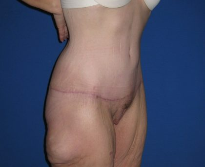 Extended Tummy Tuck Before & After Patient #3979