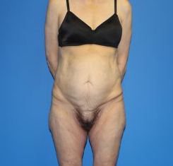 Extended Tummy Tuck Before & After Patient #3997