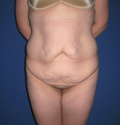 Extended Tummy Tuck Before & After Patient #4004