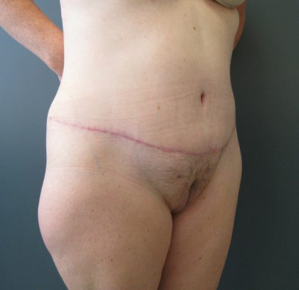 Extended Tummy Tuck Before & After Patient #4011