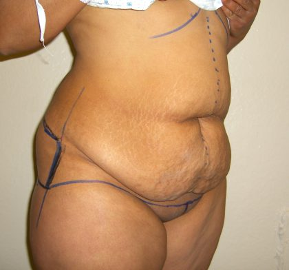 Extended Tummy Tuck Before & After Patient #4018