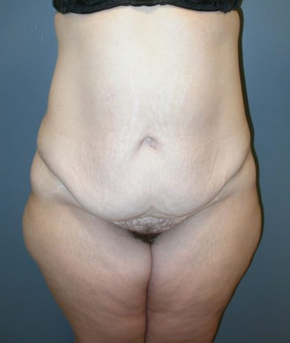 Extended Tummy Tuck Before & After Patient #4025