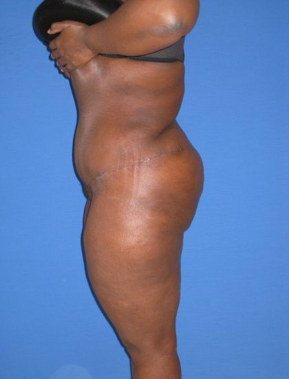 Extended Tummy Tuck Before & After Patient #3990