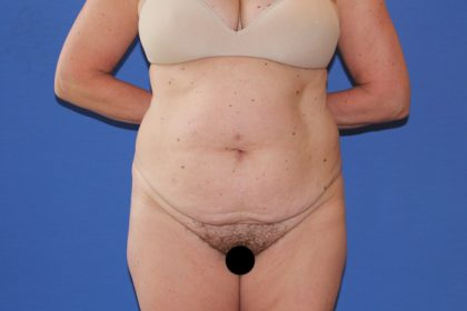 Tummy Tuck Before & After Patient #3268
