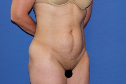 Tummy Tuck Before & After Patient #3280