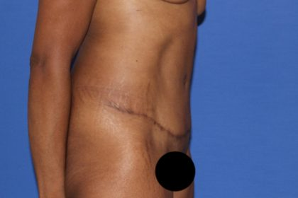 Tummy Tuck Before & After Patient #3345