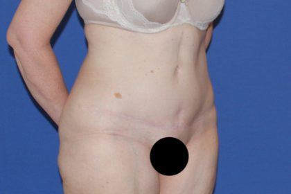 Tummy Tuck Before & After Patient #3352
