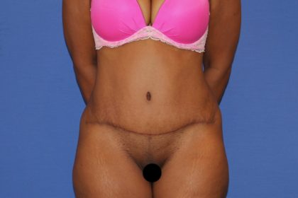 Tummy Tuck Before & After Patient #3260
