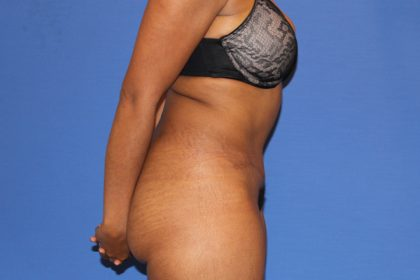 Tummy Tuck Before & After Patient #3319