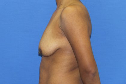 Breast Augmentation with Lift Before & After Patient #3062