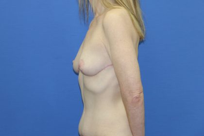 Breast Lift Before & After Patient #3437