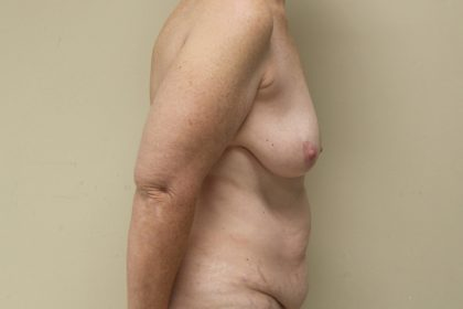Breast Augmentation with Lift Before & After Patient #3041