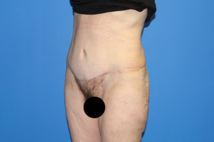 Tummy Tuck Before & After Patient #3408