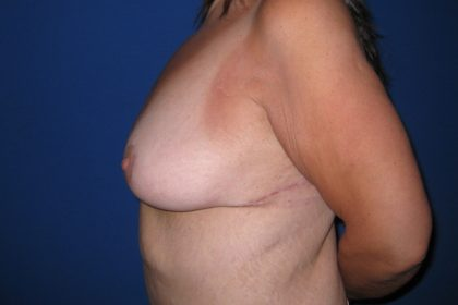 Breast Lift Before & After Patient #3470