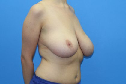 Breast Reduction Before & After Patient #2836
