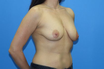 Breast Augmentation with Lift Before & After Patient #3048