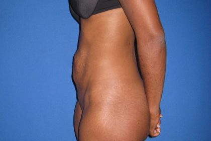 Tummy Tuck Before & After Patient #3359