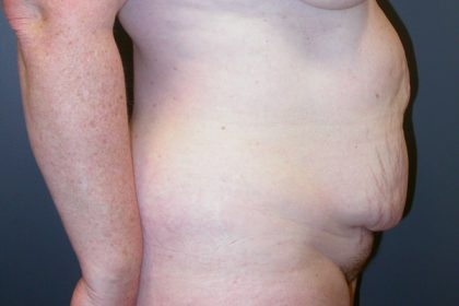 Tummy Tuck Before & After Patient #3394