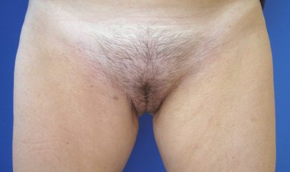 Labiaplasty Before & After Patient #4030
