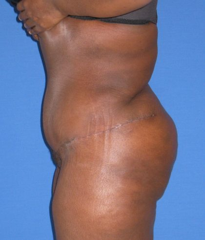 Liposuction Before & After Patient #4076