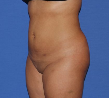 Liposuction Before & After Patient #4081