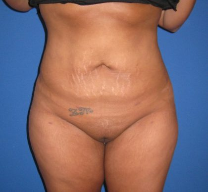 Liposuction Before & After Patient #4090