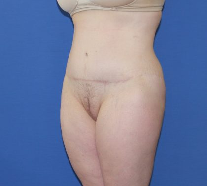 Lower Body Lift Before & After Patient #3899
