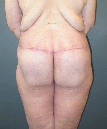 Lower Body Lift Before & After Patient #3954