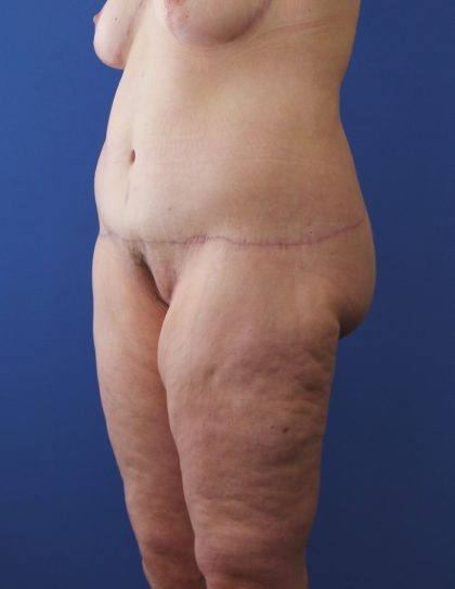 Lower Body Lift Before & After Patient #3910