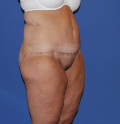 Lower Body Lift Before & After Patient #3932