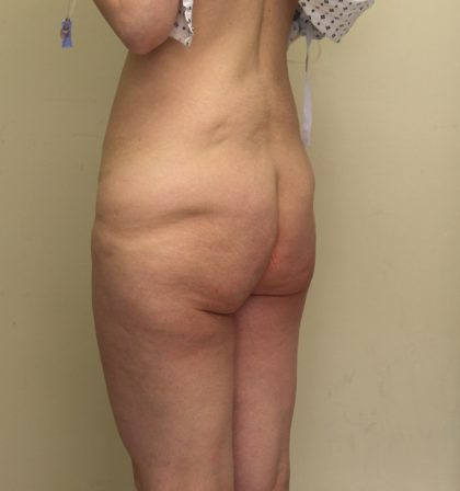 Lower Body Lift Before & After Patient #3943