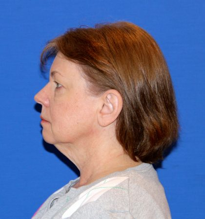 Facelift Before & After Patient #2847