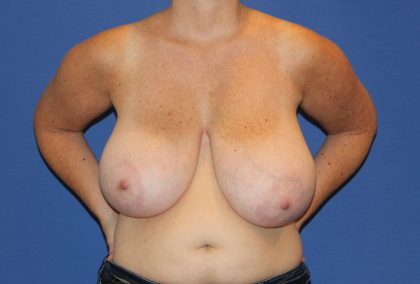 Breast Reduction Before & After Patient #2784