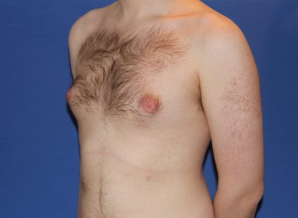 Gynecomastia Before & After Patient #2885