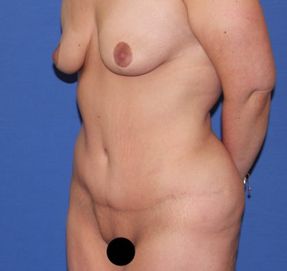 Tummy Tuck Before & After Patient #3204