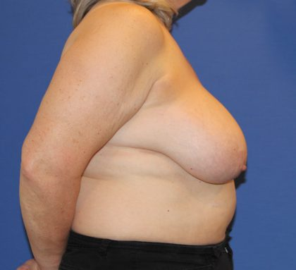 Breast Reduction Before & After Patient #2798