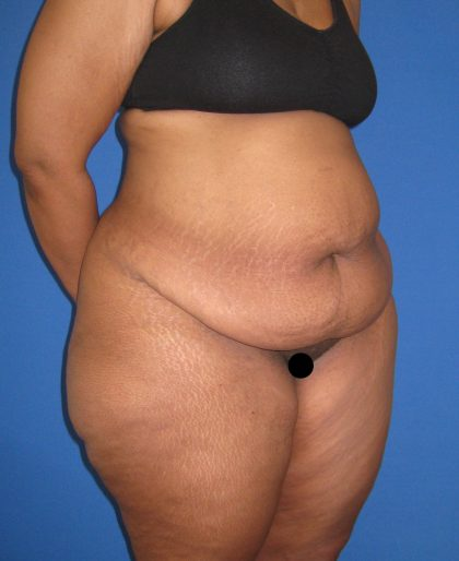Tummy Tuck Before & After Patient #3213