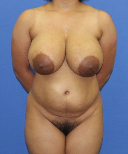 Liposuction Before & After Patient #2831