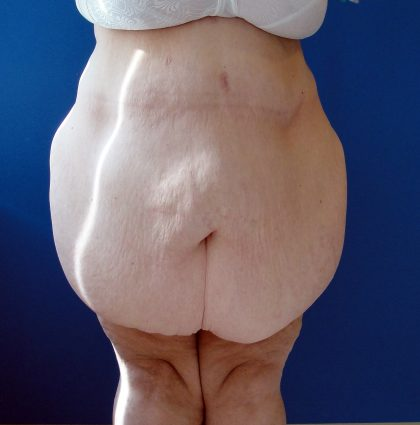 Panniculectomy Before & After Patient #4150