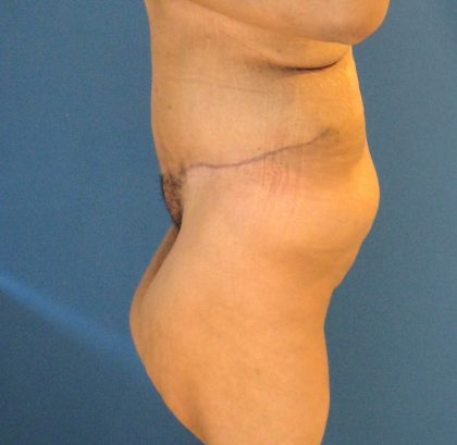 Panniculectomy Before & After Patient #4160