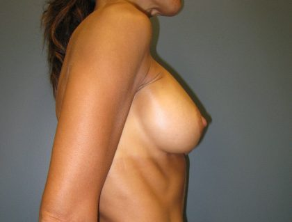 Breast Augmentation Before & After Patient #2721