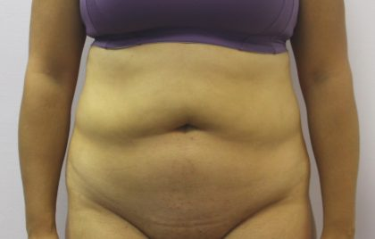 Liposuction Before & After Patient #4048