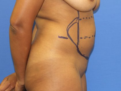 Liposuction Before & After Patient #4055
