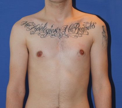 Liposuction Before & After Patient #4071