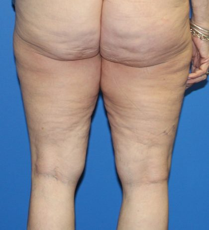 Thigh Lift Before & After Patient #4165