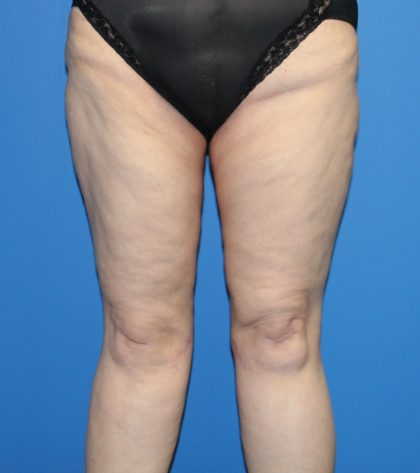Thigh Lift Before & After Patient #4202