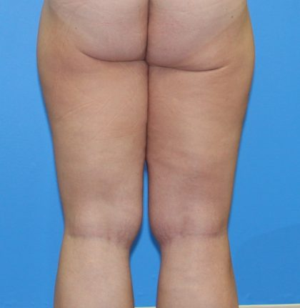 Thigh Lift Before & After Patient #4170