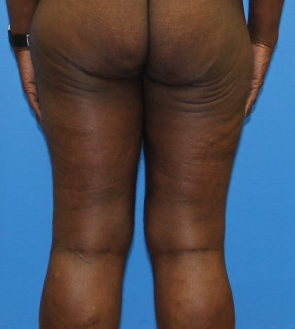 Thigh Lift Before & After Patient #4175