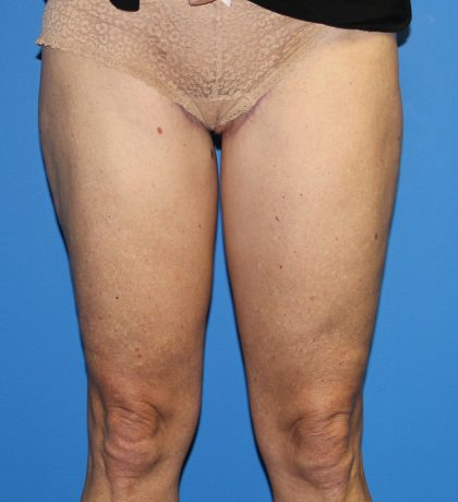 Thigh Lift Before & After Patient #4180
